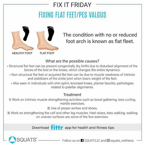 Learn how to deal with Flat Feet