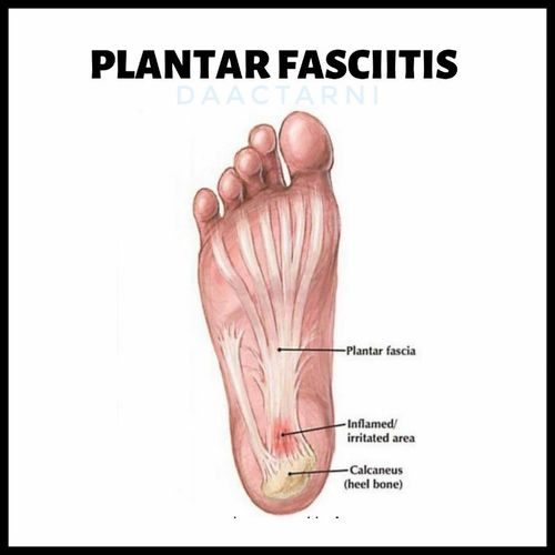 ALL ABOUT HEEL PAIN: PLANTAR FASCIITIS