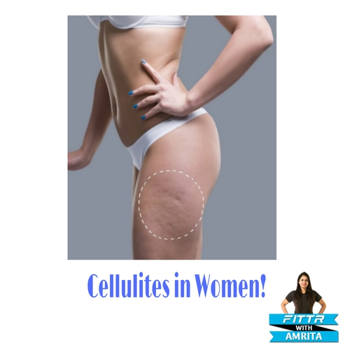 Cellulites in Women!