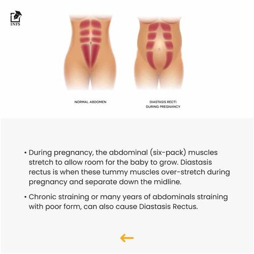 What Is Diastasis Rectus?