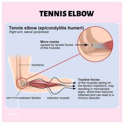 I GOT THE SAME THING WHICH SACHIN HAD!!! TENNIS ELBOW!!!