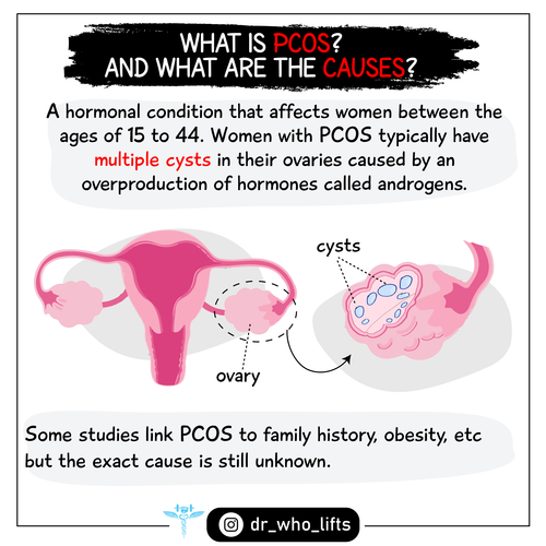 How Can diet and Exercise help women with PCOS