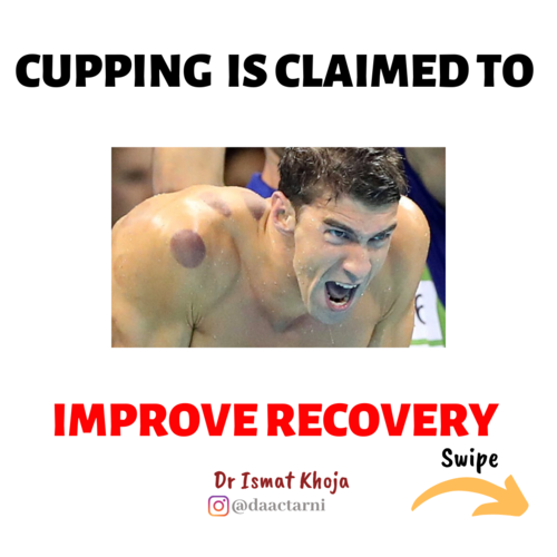 Cupping Therapy vs Hickey!