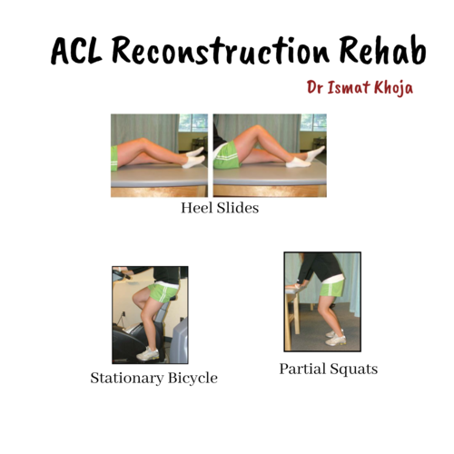 ACL Reconstruction: Post Surgical Rehabilitation